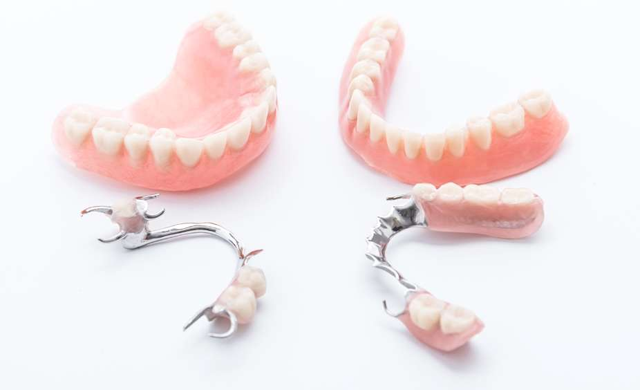 Signs Indicating You May Require New Dentures